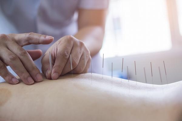 鍼灸も健康保険が使える!その条件と注意点