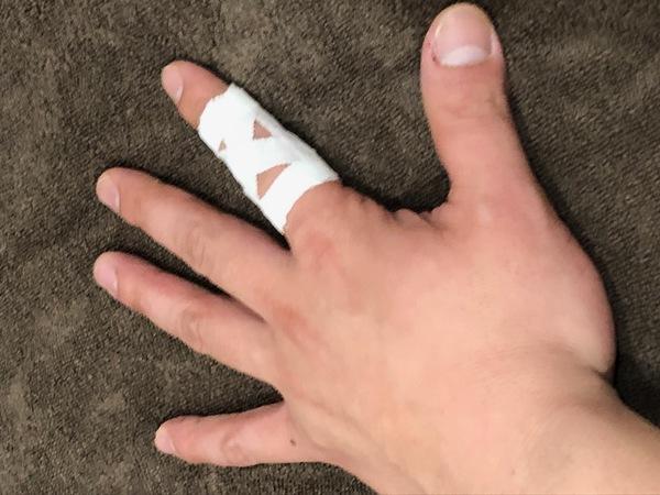 突き指のテーピング、治療